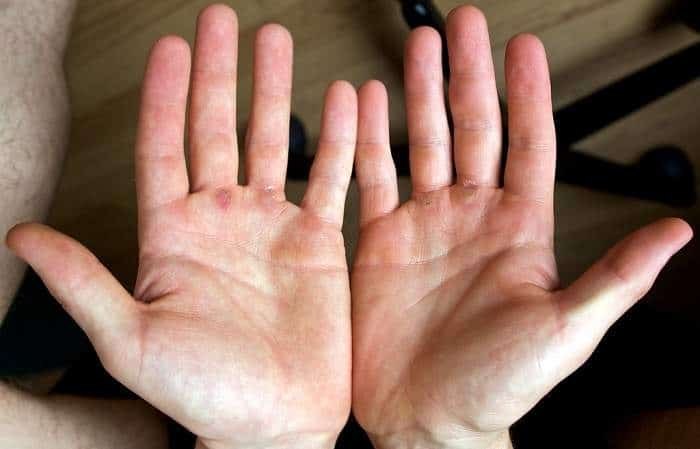 rappelling calluses